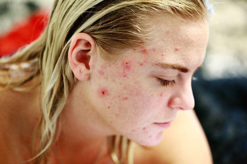 Zo pak je acne aan